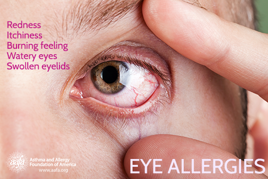 symptoms of eye allergies include redness, itchiness, burning, watery, swollen eyelids